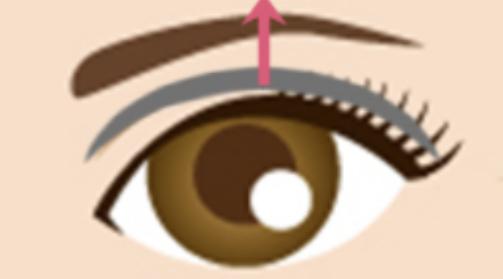 黒目整形術