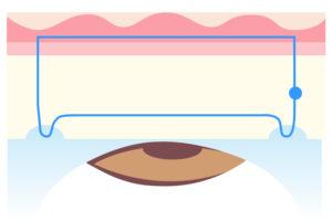 経結膜的埋没法重瞼術